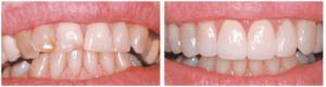 My Dentist at Morgan Creek - Align Crooked Teeth (bordered)