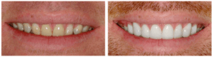 My Dentist at Morgan Creek - Brighten Stained Teeth (bordered)