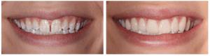My Dentist at Morgan Creek - Eliminate Spacing (bordered)