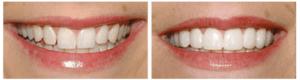 My Dentist at Morgan Creek - Perfect Hollywood Smile (bordered)