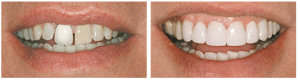 My Dentist at Morgan Creek - Renew old Dental Work